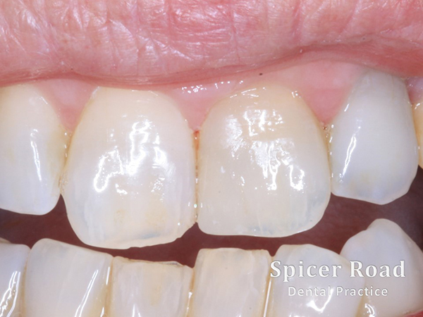 Internal Whitening Exeter Private Dentist Spicer Road Dental